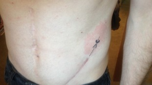 Stephen had a pair of scissors tattooed along one of his surgical scars