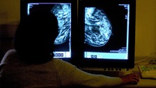 Breast Cancer affects thousands of women in the UK every year.