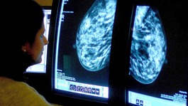 'Tipping point' in battle against cancer