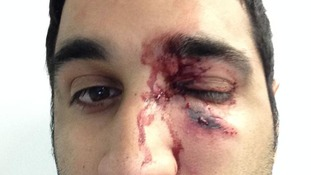 Preet Panesar suffered a shattered eye socket in the attack