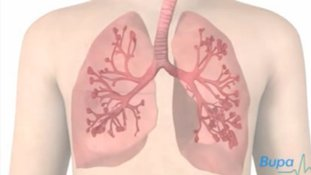 Asthma is a conditon when the airways become irritated and inflamed in the lungs.