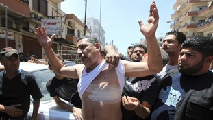 A wounded man shows his injury during clashes that erupted between Sunnis and Alawites in Tripoli, Lebanon on Saturday.
