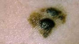 Skin cancer rates increasing