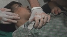 An 11-year-old fights for his life after being hit by a mortar less than ten miles from Damascus, rebels told ITV News.