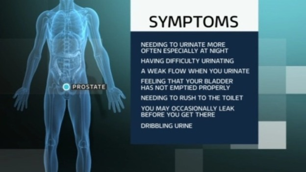 Image result for symptoms of prostate problems