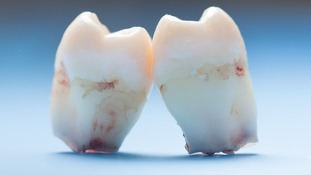 The technique developed at King's College London does away with fillings and instead encourages teeth to repair themselves.