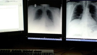 Lung cancer is the biggest cancer killer in Wales, accounting for 22 per cent of all cancer deaths.