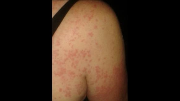 NAVER まとめシャワーも命懸け…水アレルギーと闘う女性の壮絶な日常
