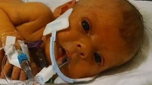 Redditor Steffel07 posted this photo of his late baby daughter Sophia attached to medical tubes.
