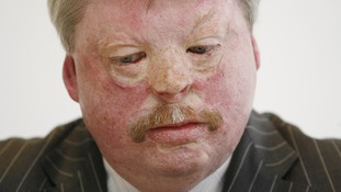 Simon Weston served as a Welsh Guardsman during the Falklands War and was aboard the Sir Galahad when it was destroyed.