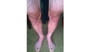 Bartosz Huzarski posted this picture of his legs after the 18th stage of the Tour de France.