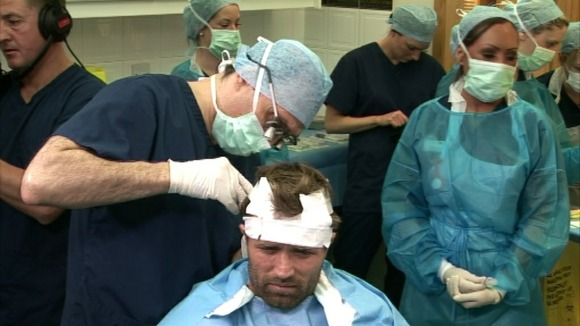 Michael Gray as grafts are taken from the back of his head