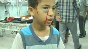 Children were treated at a hospital in Gaza.
