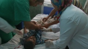 A child injured on his abdomen by shrapnel is treated in a hospital in Rafah.