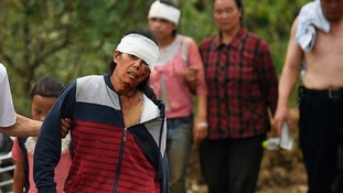 An injured woman walks with her relatives after the earthquake which has so far killed at least 398 people.