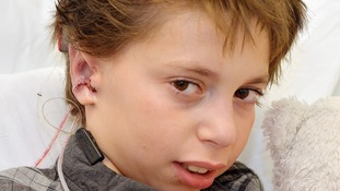 Boy born without ears has pair made from his ribs