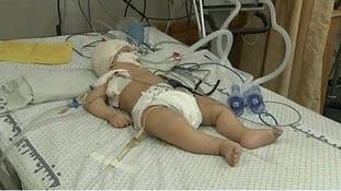 Hospitals in Gaza are full of children while the medical crisis is by no means over.