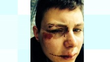 The attack left Kerry Byrnes with a black eye and what could be a fractured cheek bones