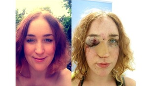 Mary Brandon before and after the attack.