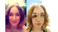 """Woman """"punched in the face"""" at Notting Hill Carnival"""