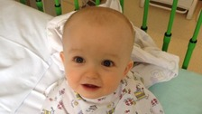 Baby boy donates bone marrow to his big sister