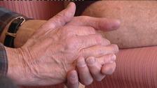 Arthritis, knuckles