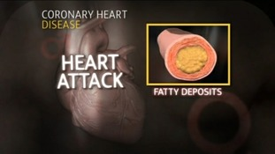 heart attack graphic