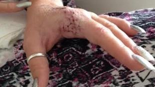 Hairdresser loses finger after spider bite in England