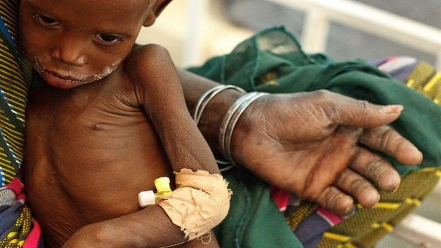Nineteen-month-old Raya Kabirou, who is severely malnourished, sits in her grandmother's lap, at the UNICEF-supported Mirriah District Hospital.