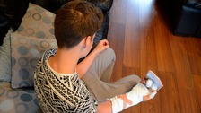 Dylan Cosgrove's bandaged arm after a disastrous firework prank.