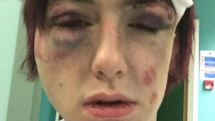 Robbie Kingsford's injuries following the attack in Surbiton