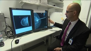 Nader Khonji, breast cancer surgeon at the RVI, with the two techniques
