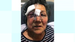 Woman who was attacked
