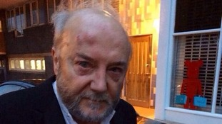 George Galloway after the assault
