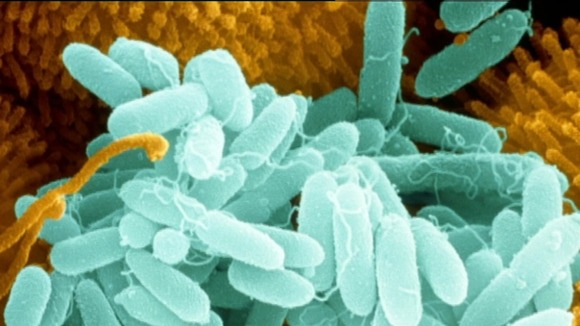 Pseudomonas bacteria 