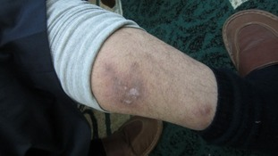 Syrian torture victim shows wounds