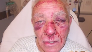 Man, 83, beaten by burglar