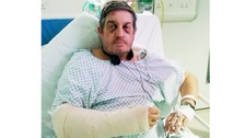 Richard Sandon was left with a broken arm, fractured ribs and bruised kidneys after the attack.