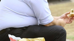 Obese people say they eat less sugar than average