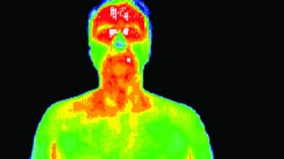 Thermal imaging used to detect health problems