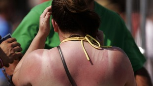 Skin cancer on the rise among middle-aged people in the South West