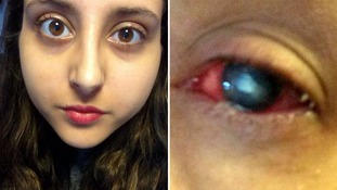 Student forced to stay awake for days on end to stop eye-eating parasite