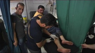 A doctor in Aleppo treats a man's wounds.