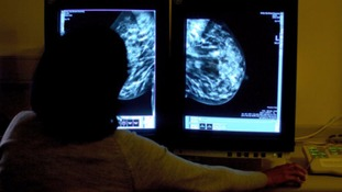 Older people are more likely to delay going to the doctors with breast cancer