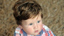 Fergus Hillman was born with a full head of hair