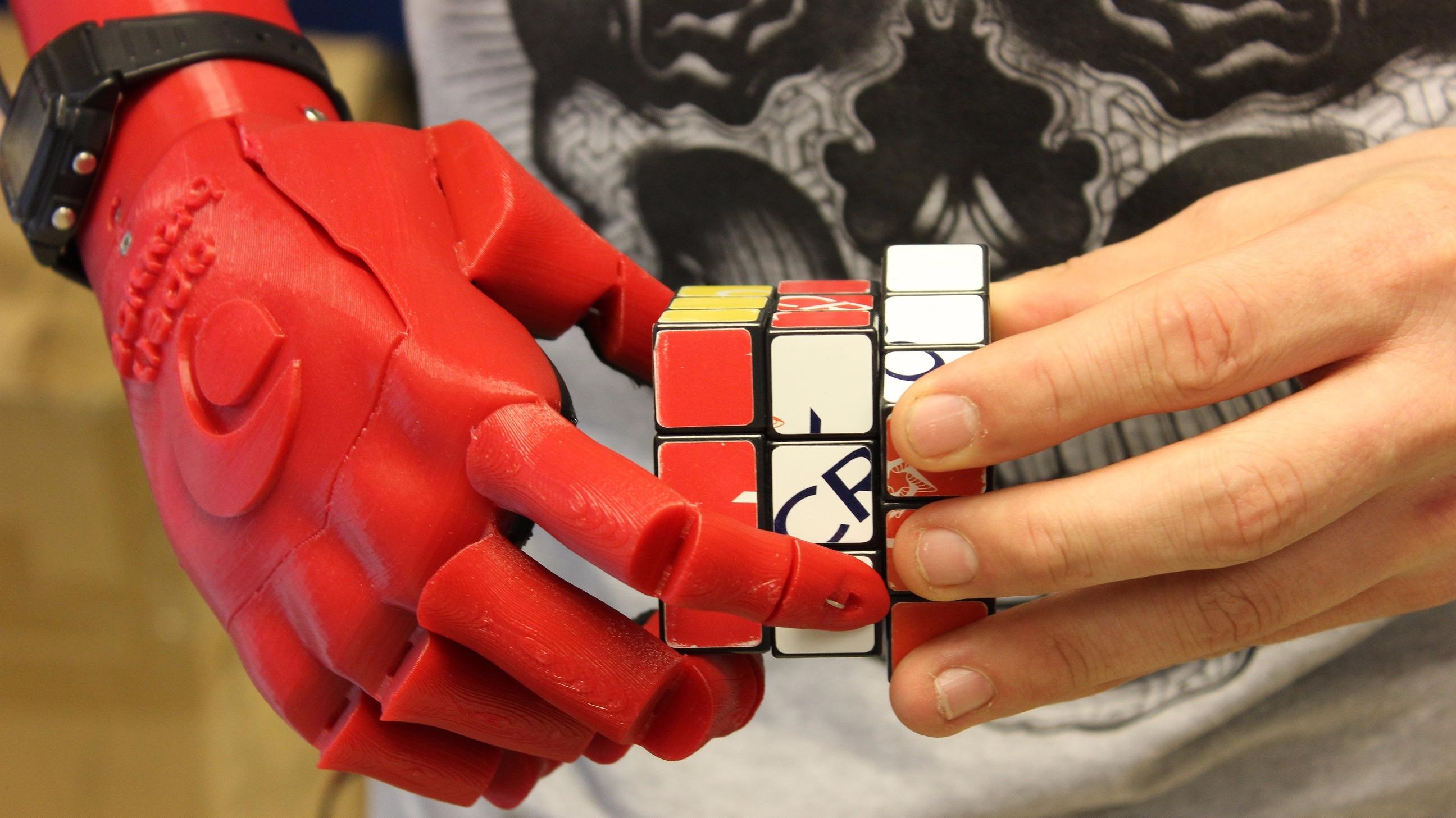Первый в мире человек с механической рукой: chyyr 86