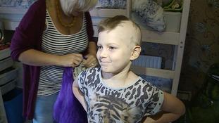 Alopecia.
