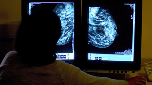 A consultant studying a mammogram (Library)