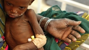 Nineteen-month-old Raya Kabirou, who is severely malnourished, sits in her grandmother's lap.