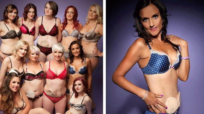 Women with Crohn's disease launch lingerie calendar to prove they can still be sexy